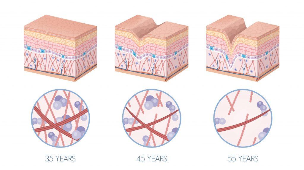 Hyaluronzuur tegen huidveroudering